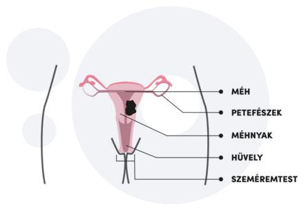 a hpv péniszrákot okoz